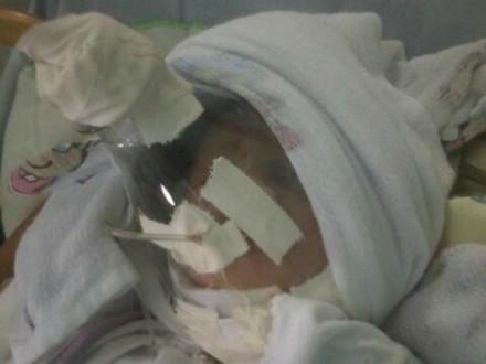 A criança que usou mascara de pet, já está hospitalizado em Manaus